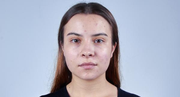peau grasse acnéique